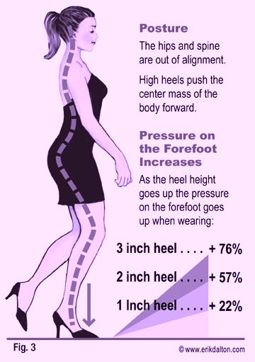 problemi ai piedi con i tacchi